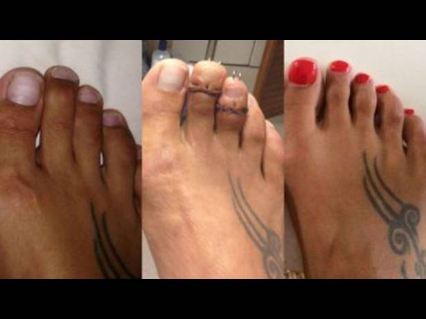 De qu se trata la dolorosa cirug a de cenicienta for Operacion de pies
