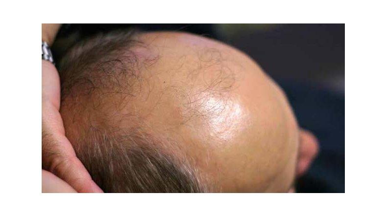 La reconstitución instantánea para los cabellos eyvon