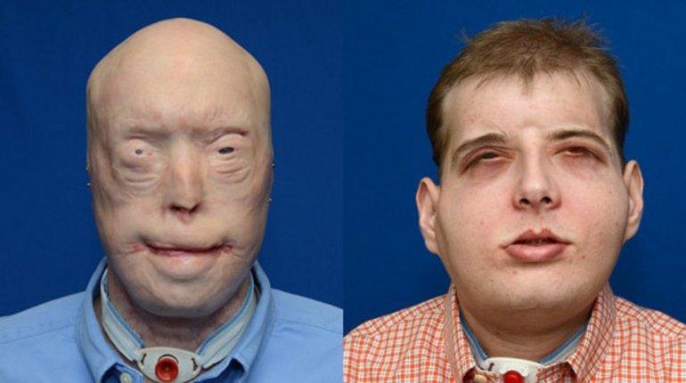 Así quedó el hombre al que se le hizo el trasplante de rostro más largo