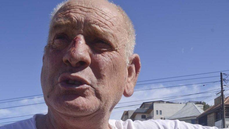 Una de los protagonistas de la gresca de ayer terminó con la nariz lastimada.