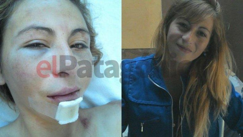 Le confirmaron la prisión preventiva a Carlos Aibar, el golpeador del Pietrobelli