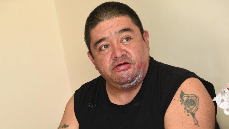 José Guinao se recupera de las graves heridas sufridas hace casi cinco meses