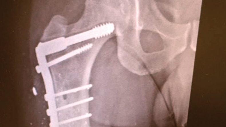 La prótesis que Jorge lleva en su pierna derecha. Fariña