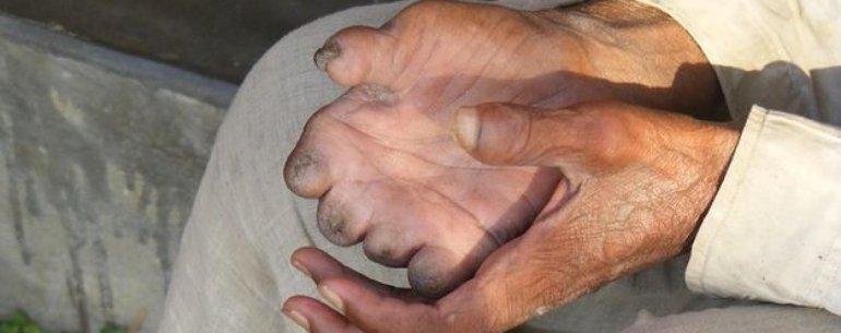 Brasil es el país más afectado por esa enfermedad en Sudamérica.
