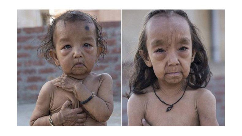 Dos niños sufren la enfermedad de Benjamin Button