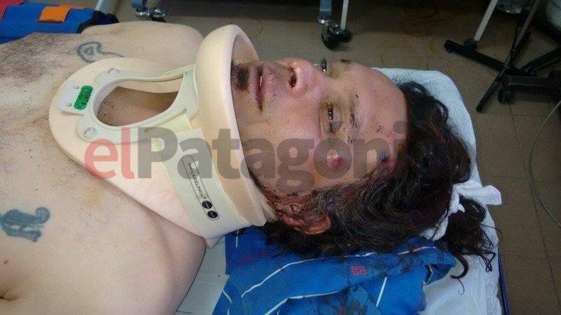 Enfrentamientos entre UOCRA y Petroleros dejó dos heridos