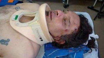 El trabajador petrolero que sufrió una brutal golpiza en Pico Truncado, tiene fractura en uno de sus brazos y traumatismo de cráneo.