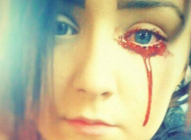 Le sangran los ojos y los médicos no encuentran la razón