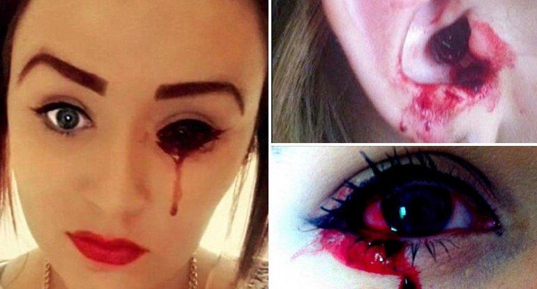 El extraño caso de la joven  que sangra por los ojos y oídos