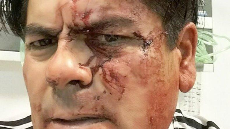 El taxista Diego Barrera fue violentamente golpeado por un pasajero en la cabeza y el rostro.