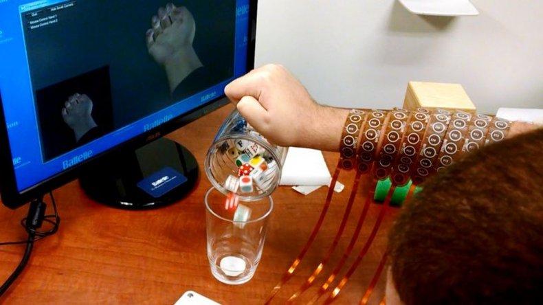 Un chip en el cerebro que le devolvió movilidad a sus manos