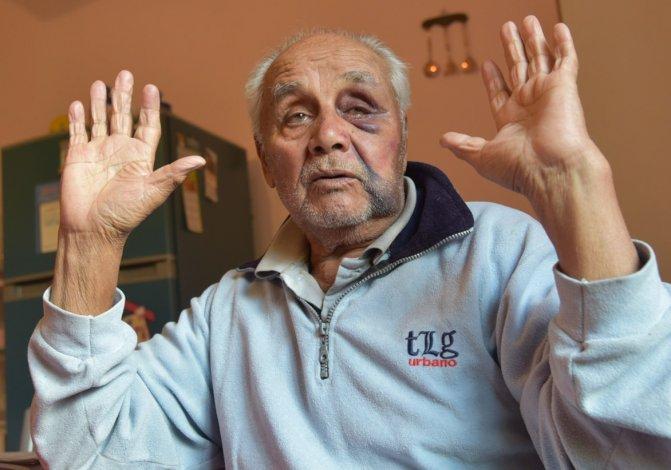 Ramón Reyes debió soportar golpes de puño en el rostro por parte de delincuentes que le arrebataron 200 pesos cuando volvía de comprar pan.