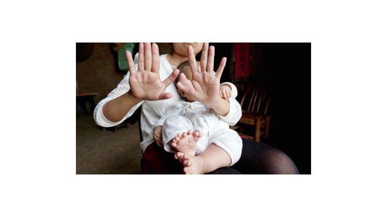 Un bebé nació con 31 dedos y sus padres piden por una operación