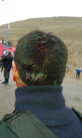 El policía que recibió un piedrazo en la cabeza.