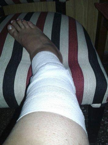Una mujer que caminaba por la bicisenda de Restinga Alí fue ferozmente atacada por un perro y sufrió profundas heridas en una pierna.