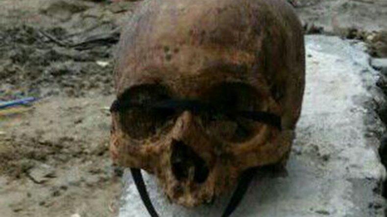 Hallan un cráneo humano con  un cordón cruzado en el maxilar