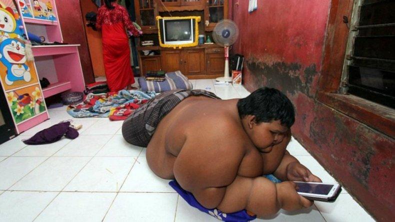 Tiene 10 años, pesa 192 Kilos y temen por su vida