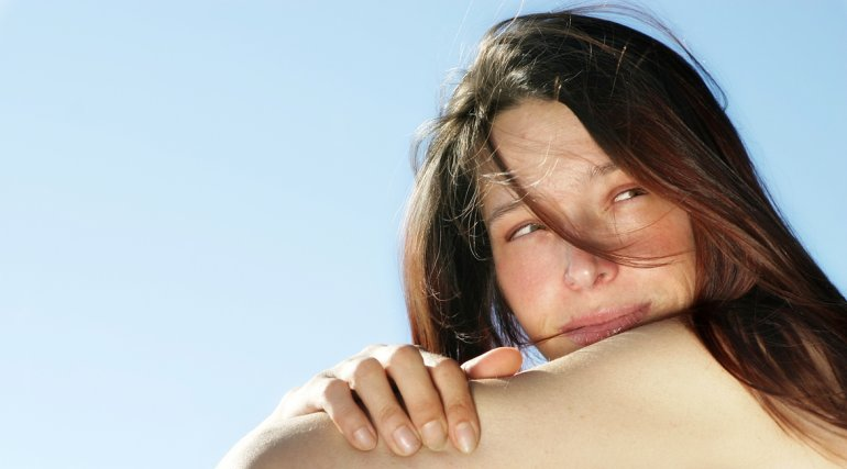 Advierten que quemaduras solares pueden causar vitiligo