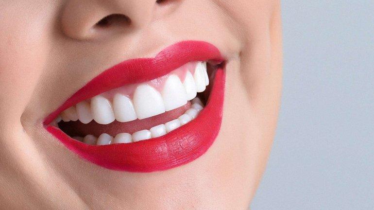 La peligrosa obsesión de querer blanquear los dientes