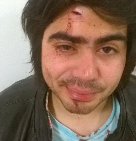 Denuncia que lo corrieron y golpearon dos patovicas de un pub céntrico