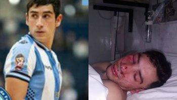asuntos internos interviene por la denuncia del jugador de futsal brutalmente golpeado