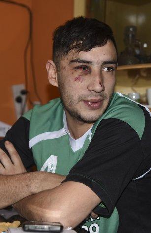. Matías Rima señaló a cuatro policías como autores de la golpiza que sufrió el jueves por la noche cuando se dirigía a la casa de su hermana.