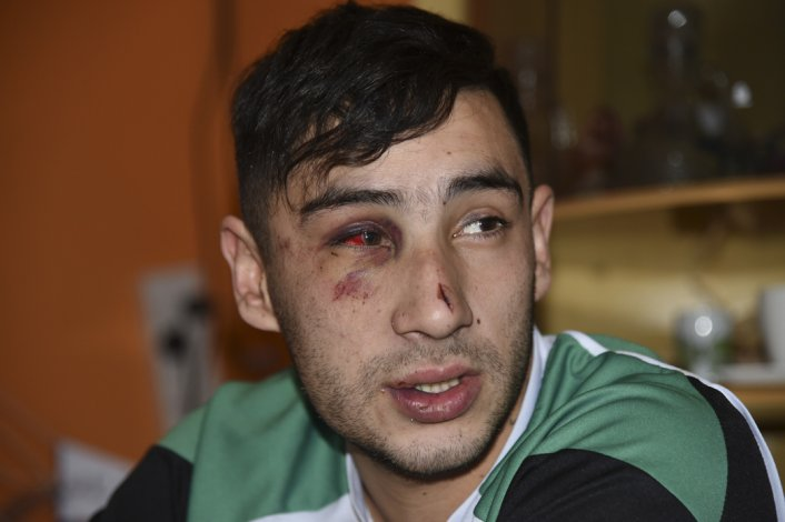 Matías Rima y su amigo denunciaron ante la Fiscalía a los policías que el jueves por la noche lo golpearon en la calle.