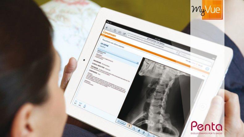 Los pacientes de Penta pueden ver los resultados de sus estudios vía online