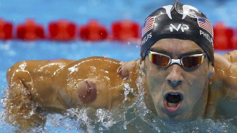 Quienes vieron el triunfo de Phelps en el segundo día de Río 2016 se pudieron percatar de estas marcas rojas en su cuerpo.