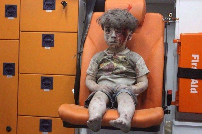 La imagen de un niño herido que muestra el horror de los bombardeos