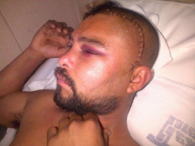 Un hombre perdió el habla luego de sufrir una brutal golpiza a la salida de una fiesta