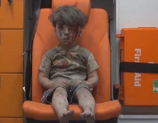 Dudan de las imágenes de Omran, el nene sirio que conmovió a todos
