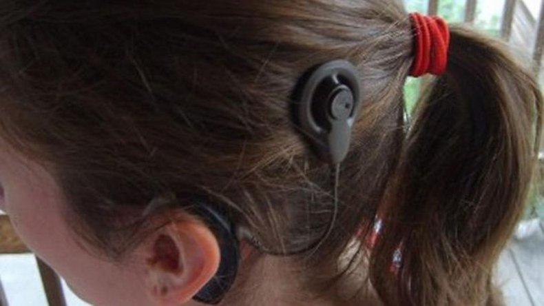 Le robaron a una nena el maletín del implante que le permite escuchar
