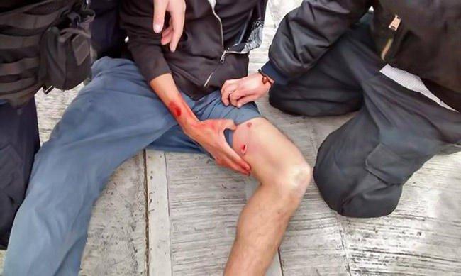 Le pegaron un tiro en una pierna al resistirse a un robo