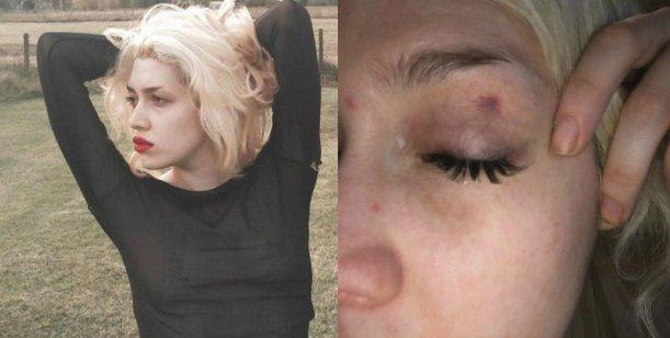 Militta Bora, tras recibir un golpe en el ojo: Perdono todo, el amor divino llena mi