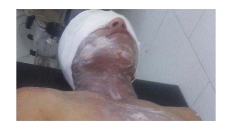 Una pareja estaba jugando y ella le desfiguró la cara con agua hirviendo