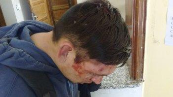 A José le pegaron una pedrada en la cabeza mientras tomaba sol en la costanera. Después de propinarle una paliza le robaron el teléfono celular.