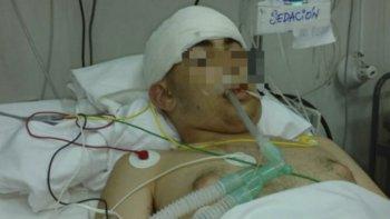 Nicolás Pastraro, que fue torturado y golpeado en el baño del Liceo Militar General San Martín.