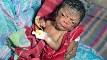el extrano caso del bebe anciano: nacio cubierto por arrugas y pelo