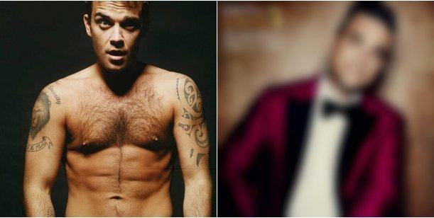 Robbie Williams se convirtió en otro cantante gracias a las cirugías estéticas