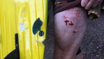un tiburon ataco a un surfista en una playa de australia