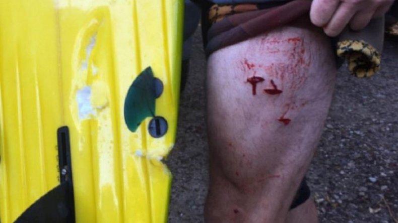 Un tiburón atacó a un surfista en una playa de Australia