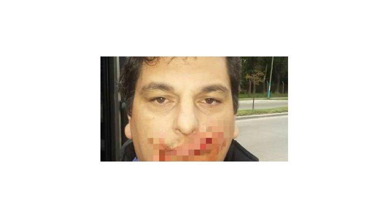 Violenta agresión a un chofer de colectivo