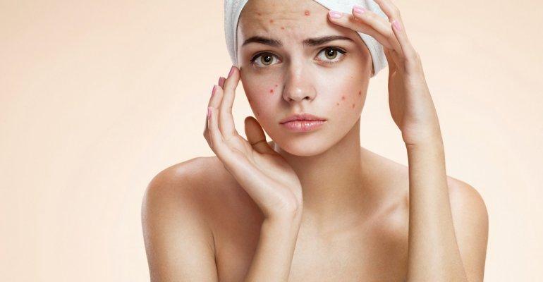 Todo sobre el acné