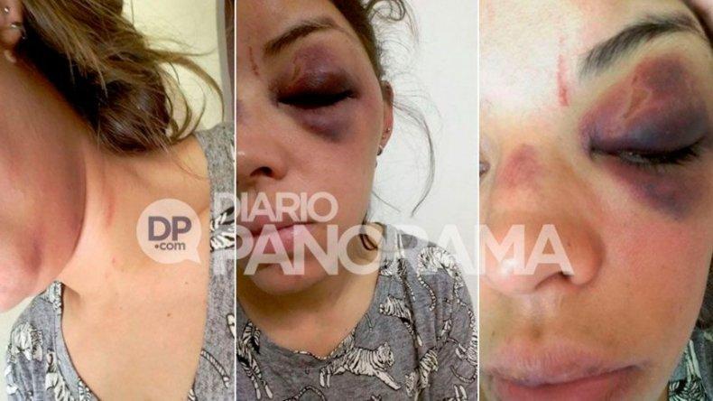 Una mujer se tiró del auto de su ex tras haber sido brutalmente golpeada