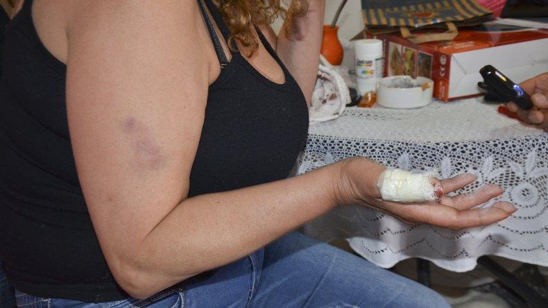 La denuncia pública que Rosa Gómez Esparza realizó ante El Patagónico se anexó como prueba tanto en el sumario administrativo como en la causa judicial que se desarrollan contra el policía Luis Varas.