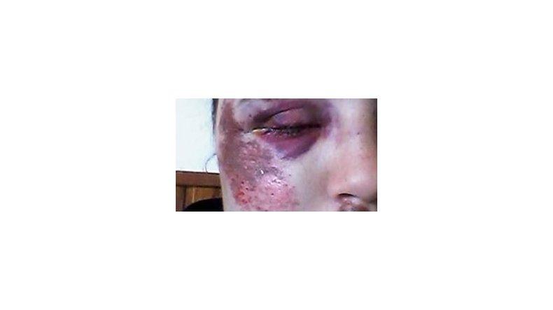 Violó la perimetral y con otros tres hombres molió a golpes a su ex