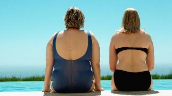 obesidad, la epidemia que merece una reflexion para proponer soluciones
