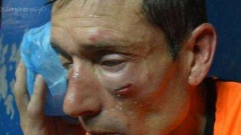 brutal golpiza a un arbitro en las semifinales del federal b