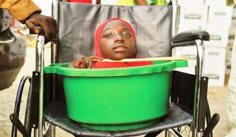 Murió Rahma Haruna, la joven sin cuerpo que vivía en un balde